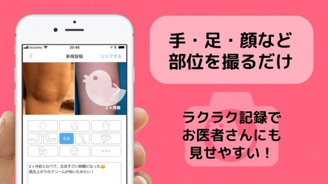 アトピヨ画面-1